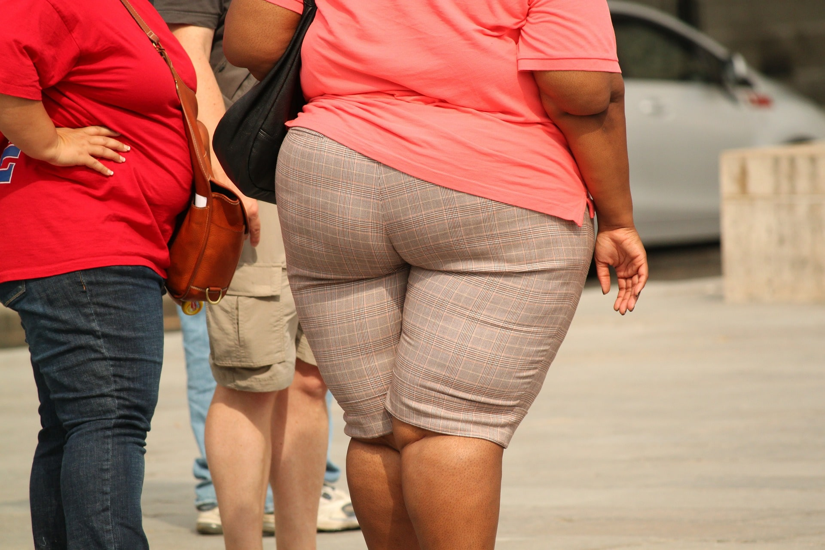 Les conséquences de l'obésité en France