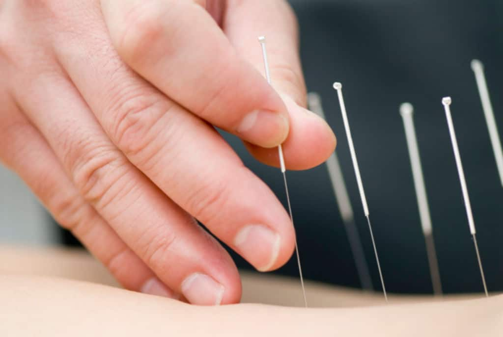 Quand l'aiguille d'acupuncture atteint le poumon